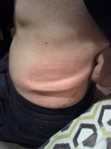 This is a good example. Immediately after the clamp comes off the fatty skin is firm, you need to massage this. This is exactly how it looks after an actual Coolsculpting session.